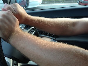Hairy arms